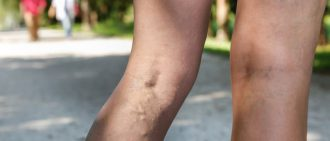 What Are Spider and Varicose Veins?