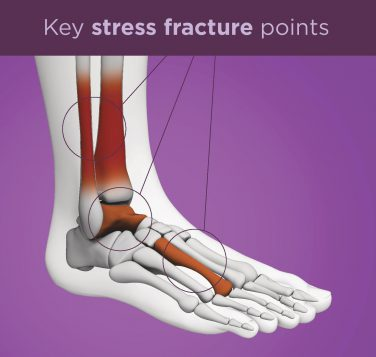 Stress Fracture Causes And Prevention Upmc Healthbeat
