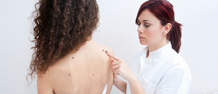 female doctor looking at mole