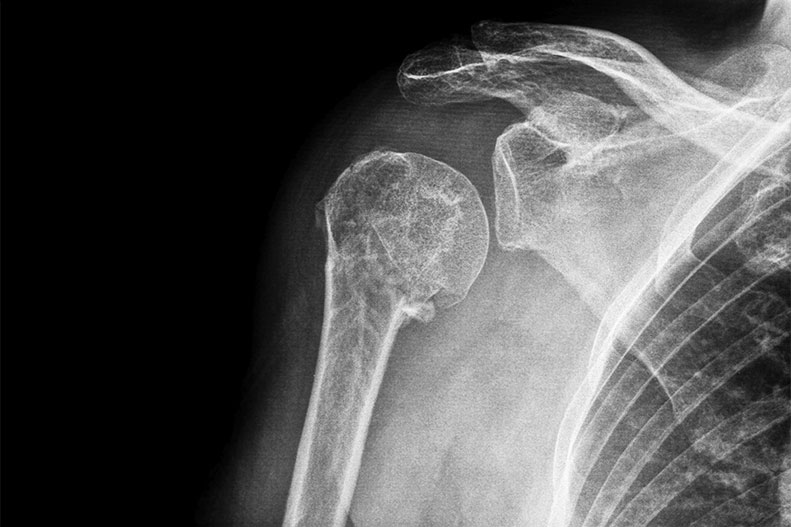 shoulder x-ray
