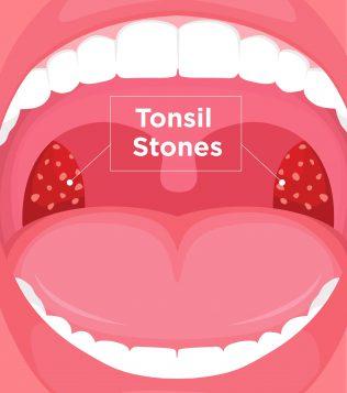 After giving oral tonsils Swollen tonsils