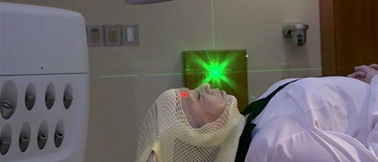 srs radiosurgery