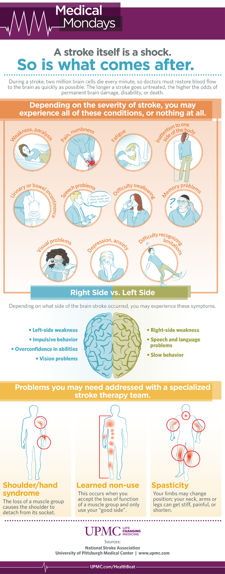 stroke medical mondays infographic
