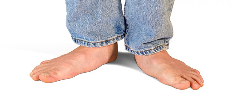 what are flat feet symptoms treatment upmc healthbeat
