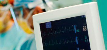 手术时心脏监护仪