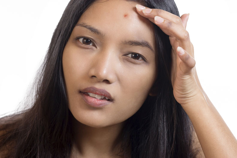 how to bring a pimple to a white head