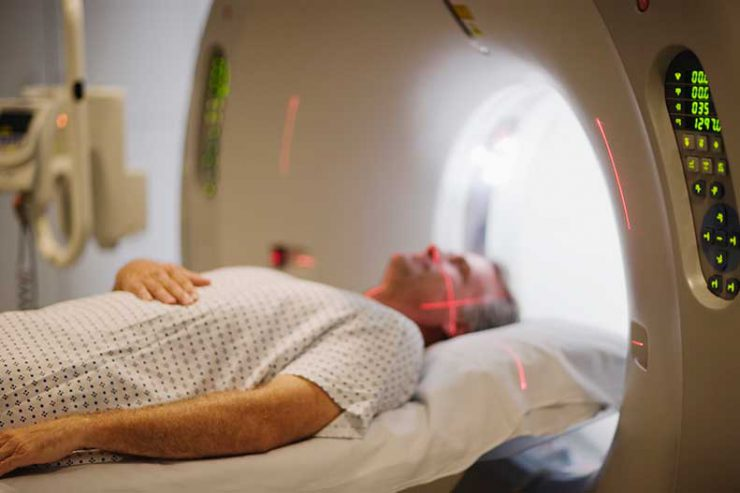 What are MRI and MRA Scans?