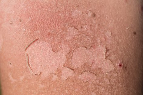 Sunburn or Sun Poisoning? Tell the Difference | UPMC