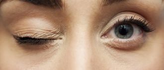 Why Is My Eyelid Twitching? 6 Surprising Reasons