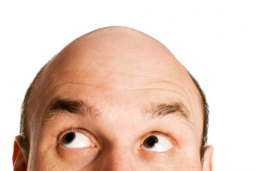 Male-Pattern-Baldness