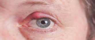 This Is What You Need to Know to Treat an Eye Stye