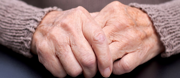Learn more about how to treat arthritis