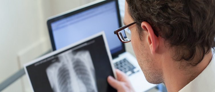 Learn about lung nodules